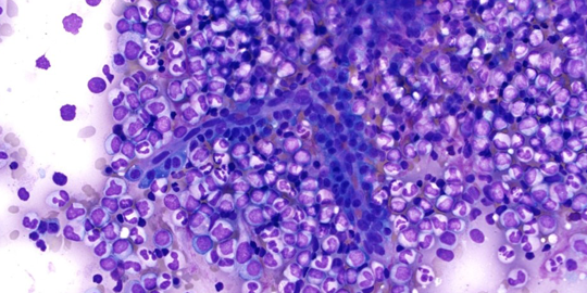 540x270myelomaCells.png